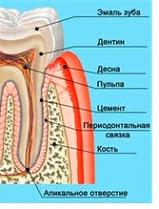 лечение острой боли зубной