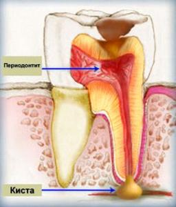 леченгие зубов причины
